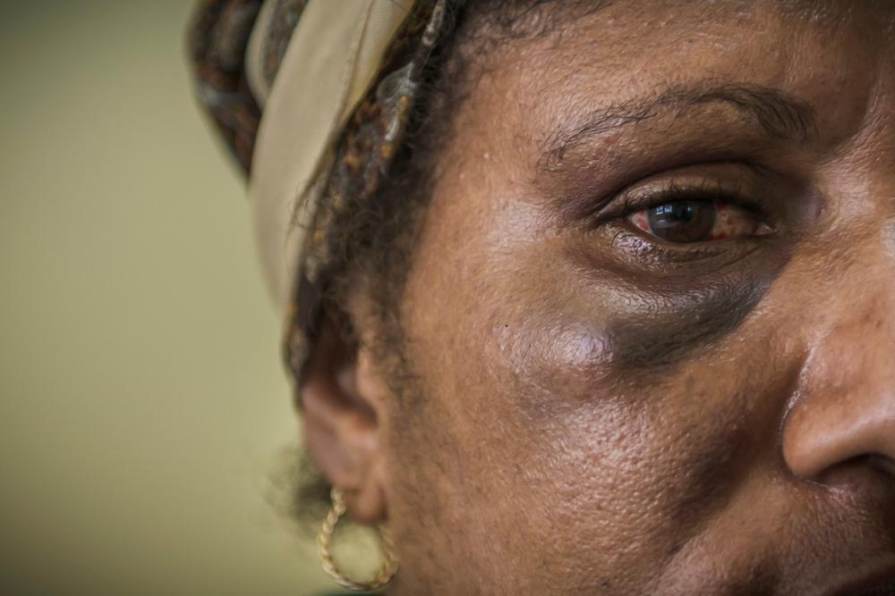 אשת העולם הגדול: אלימות מינית בלתי נתפסת בפפואה ניו גינאה