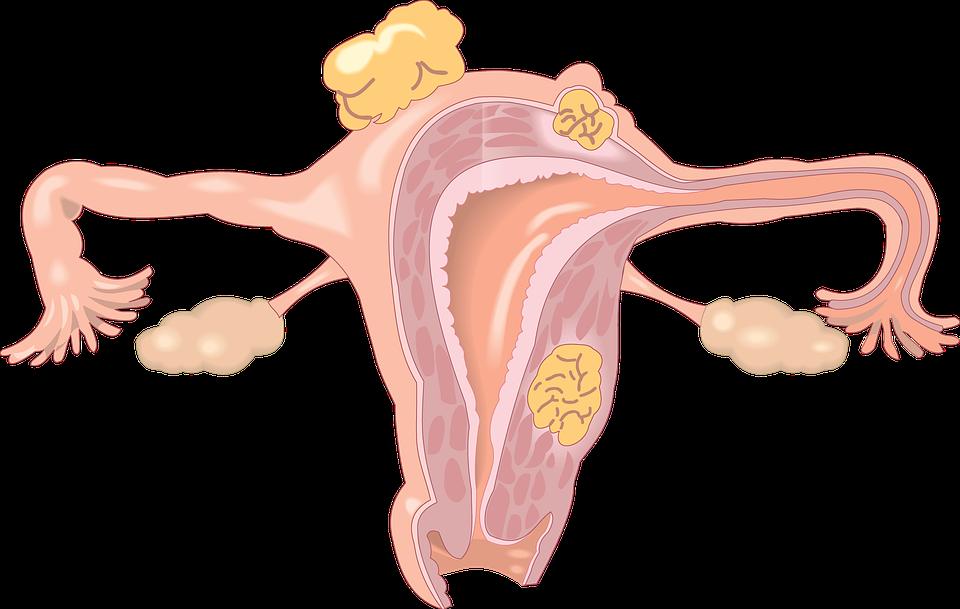 אוניברסיטת סידני אישרה מחקר שיבדוק את ההשפעה של אנדומטריוזיס על חיי המין של גברים